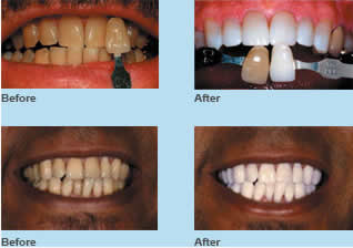 226 172 Teeth Whitening Prices Uk Inexpensive Best Reviews