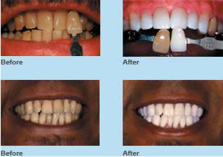 Shelby Township Dentist Explains Teeth Whitening Dentist Shelby