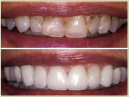 A Dental Veneer Is Thin Shell Of Porcelain That Bonded To Tooth Improve Its Color And Shape Generally Covers Only The Front