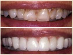 Porcelain Veneers - Dentist Shelby Township, Michigan