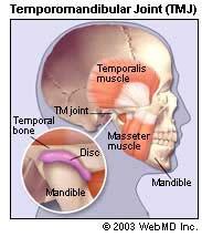 TMJ Causes