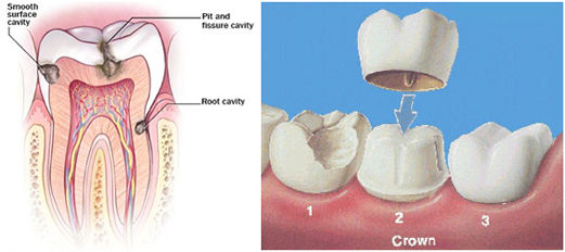 Cosmetic Dentist in Shelby Discusses Dental Crowns and Cavities
