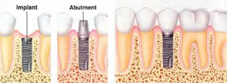 Ask the Gentle Dentist: Dental Implants