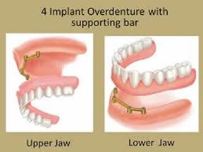 Ask the Gentle Dentist: Dental Implants