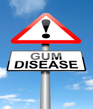 Gum Disease Treatment - Shelby Twp, MI