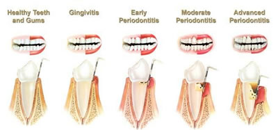Emergency Dentist in Shelby Twp. MI - Tooth and Gum Pain