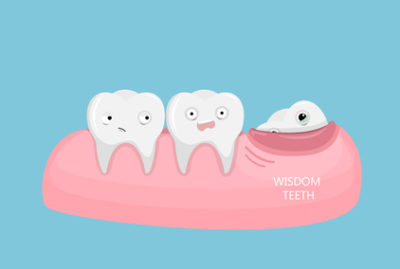 Understanding Why People Need Their Wisdom Teeth Removed