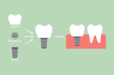 When & Why Does Someone Need Dental Implants?