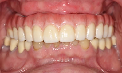 Fixed Hybrid Dentures - Shelby Twp., MI